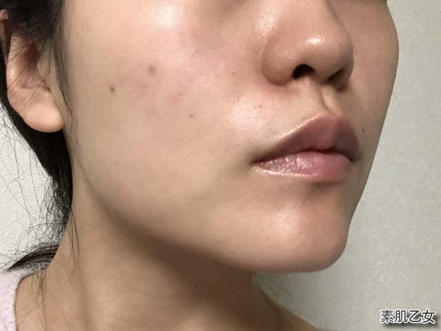 シルクリスタを塗る前のお肌のイメージ