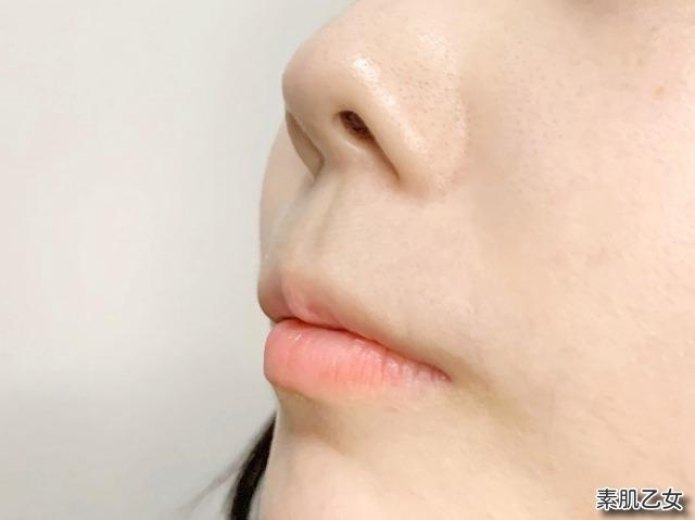 DUOクレンジングバーム 小鼻のアフター